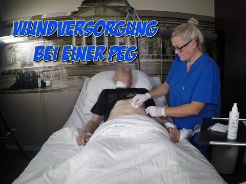 Wundversorgung Bei Einer PEG