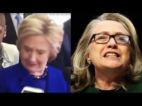 ░▒▓ Hillary Clinton Parkinson