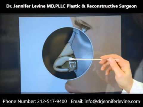 Dr. Jennifer Levine, Best Nose Surgeon in New York explains the Nasal Anatomy