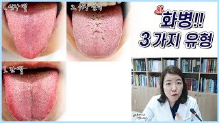 화병 / 홧병 혀 설진…
