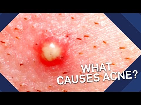 What Causes Acne? | Brit Lab