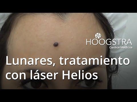 Lunares, tratamiento con láser Helios (16026)