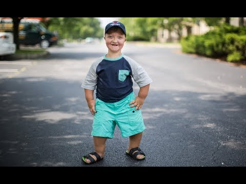 My Dwarfism Is One In A Million | BORN DIFFERENT