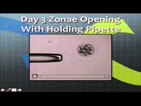 Embryo Biopsy: Technical Aspects