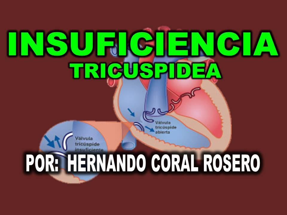 insuficiencia leve valvula tricuspidea