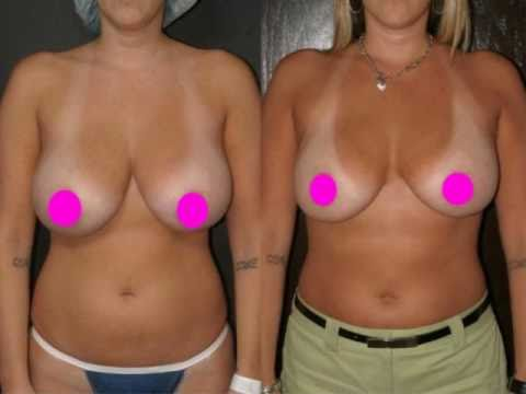 Boob reduction working out