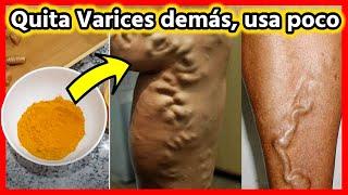 👉🏽Frótalo en las VARICES y desaparecerán de tu piel en unos días! 100 por ciento EFECTIVO!