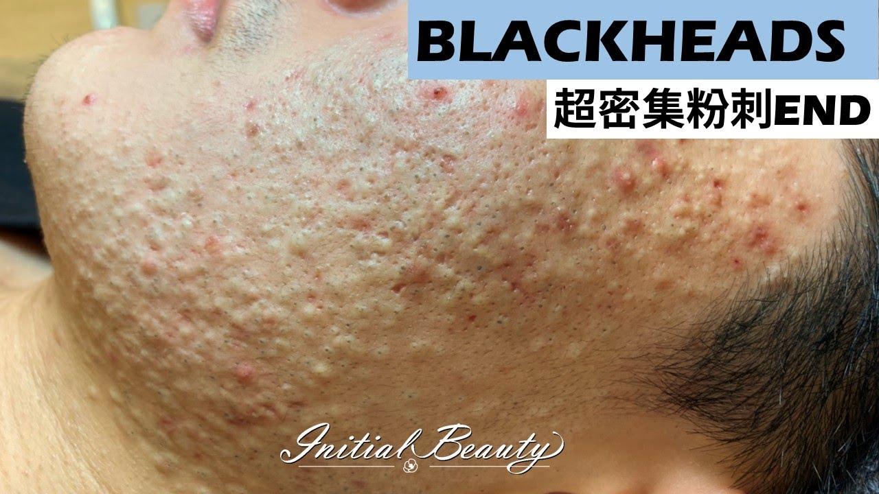 超密集粉刺END( blackheads ) - Taiwan Tainan台南清粉刺最乾淨