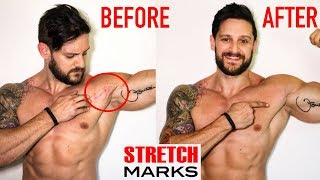 STRETCH MARK REMOVAL | Best Medical To Home Remedies | Why You SHouldn