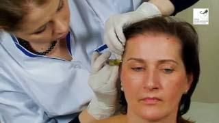 видео О Курсах Мезотерапии Для Всех Желающих
