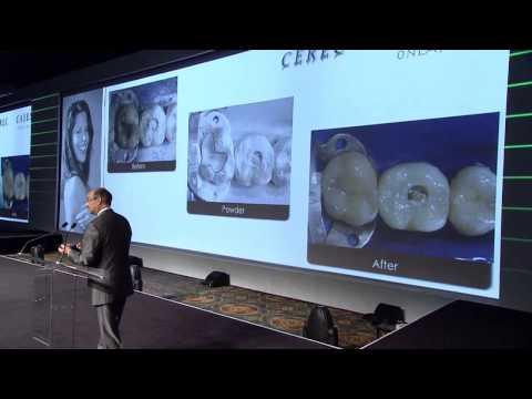 CEREC 27 and a half — Dr. Brian Lesage