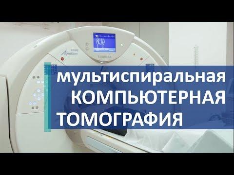 Компьютерная томография. 🔍 Мультиспиральная компьютерная томография для точной диагностики.