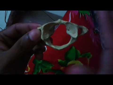 Cervical Vertebrae by SMMCians