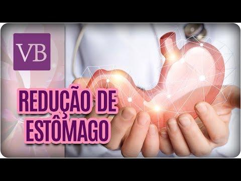 Tipos de Redução de Estômago - Você Bonita (22/08/17)