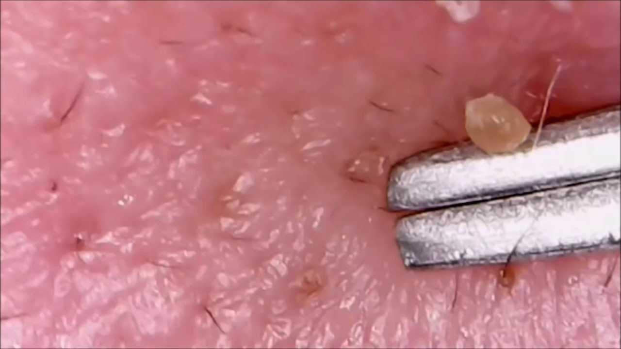 Worst Pops! Cysts, Zits, Pimples & Blackhead Popping - YouTube