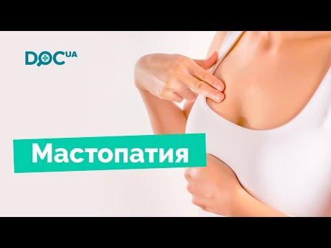 Мастопатия молочной железы: причины мастопатии, симптомы мастопатии, лечение мастопатии