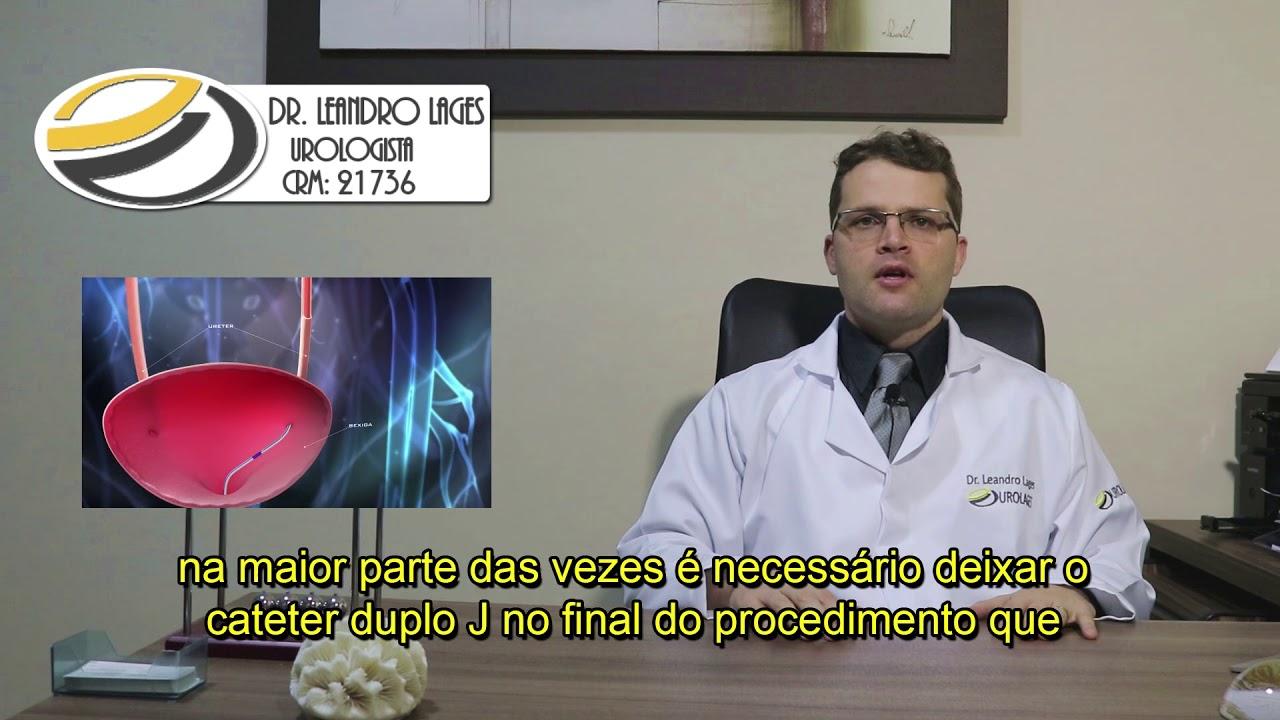Dr Leandro Lages Ureterolitotripsia Youtube
