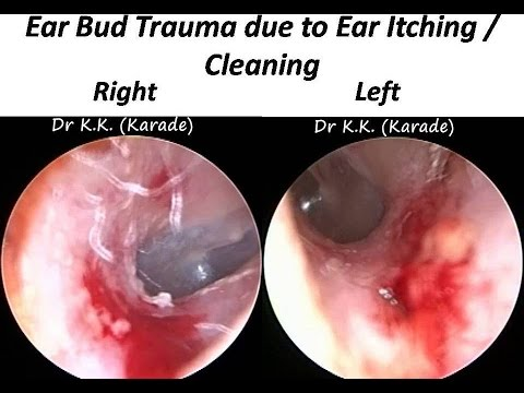 ear bud trauma in both ear canals due to itching. Black Bedroom Furniture Sets. Home Design Ideas