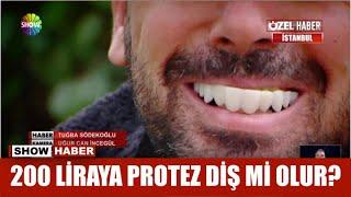 200 liraya protez diş mi olur?