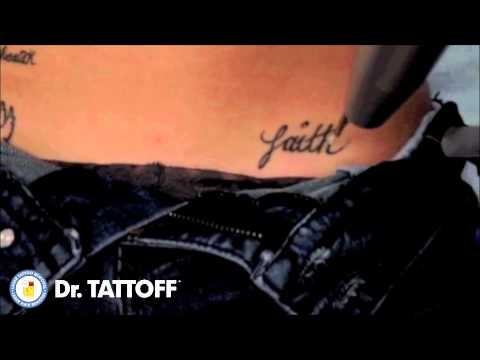 Tattoo Removal - Faith Tattoo Erased from Hip with Laser Tattoo Removal Procedure in Dallas, Texas