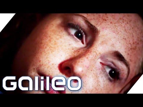 Medizinisches Wunder: Blinde Frau kann über Nacht wieder sehen | Galileo Lunch Break