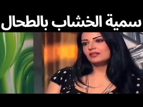 رقة وجمال سمية الخشاب قبل الزواج من احمد سعد وقبل ان يتسبب لها ازالة الطحال والشروع في قتلها