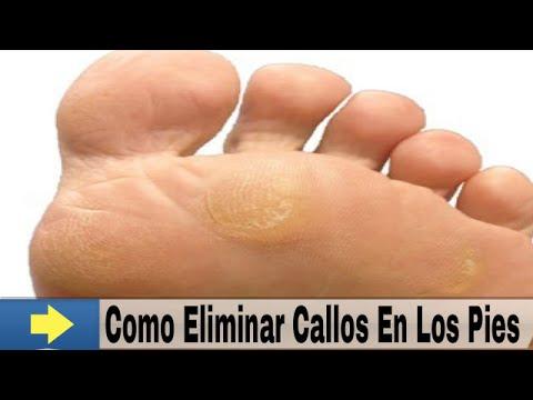 Callos en los pies como eliminarlos remedios caseros para - Como mantener los pies calentitos ...