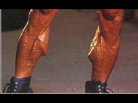 Who had the Best Calves in Bodybuilding?