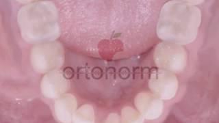 Alt Çene Kesici Diş Çekimi - 2 - Ortonorm Ortodonti Tedavi Merkezi