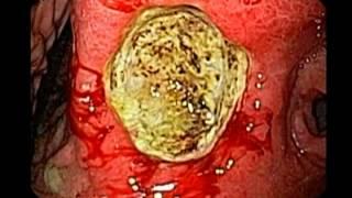 Endoscopy of Gastric Ulcer