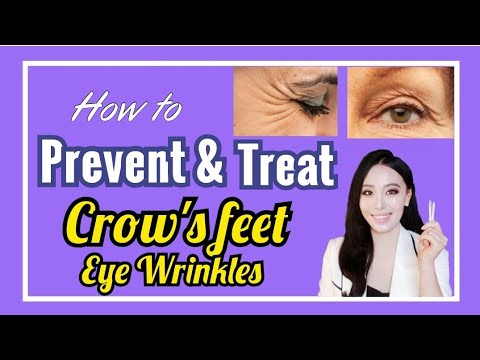 How To Prevent/Treat CROW'S FEET, EYE WRINKLES At Home