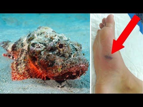 When Stonefish Attack