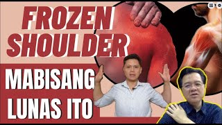 Frozen Shoulder: Mabisang Lunas Ito -by Doc Willie Ong