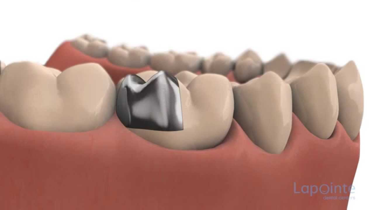 Inlays and onlays - Lapointe dental centres - YouTube