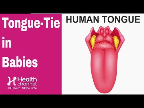 Tongue-Tie in Babies