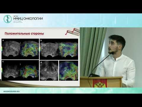 Технологии УЗИ в визуализации рака предстательной железы