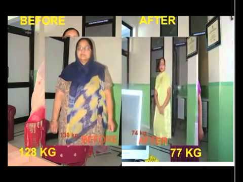 ▶ BEFORE AND AFTER BARIATRIC SURGERY with Mini Gastric Bypass Surgery, Jammu Hospital Jalandhar
