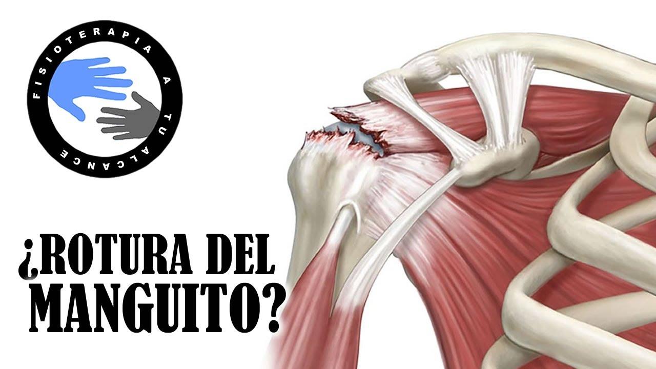 el más nuevo afe3a f8ad8 ¿Dolor de hombro? 3 test para saber si tu manguito rotador tiene una lesion  o esta roto