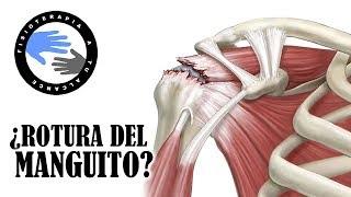 Un en muscular hombro curar el desgarro como