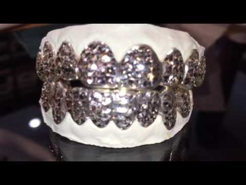 Princess cut silver white gold grillz  YouTube