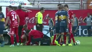 تدخل عنيف من تيفيز يتسبب بكسر قدم لاعب ارجنتينوس
