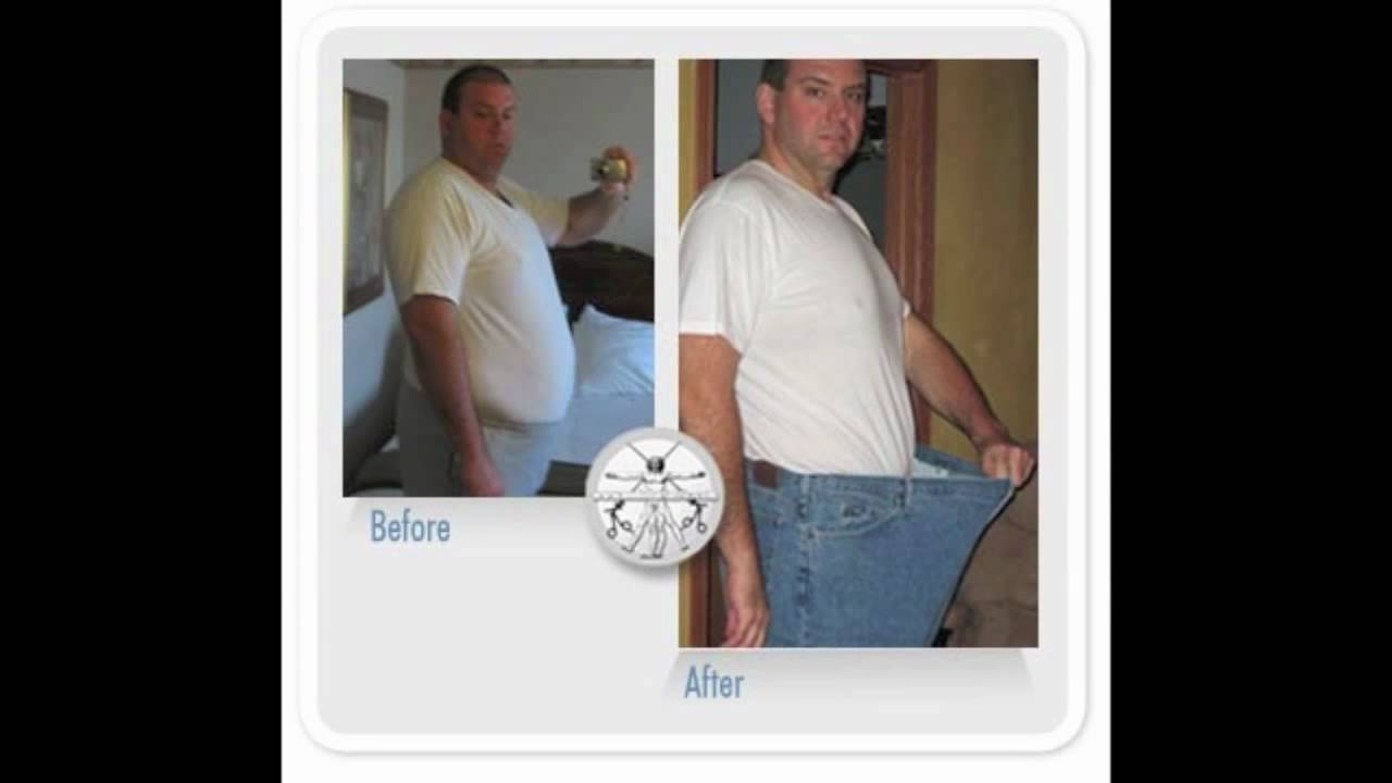 100 Gastric Sleeve Before And After Pics Weight Loss Surgery Vsg