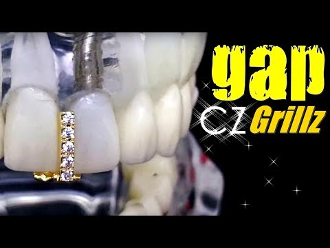 CZ Gap Grillz Gold Plated Tooth