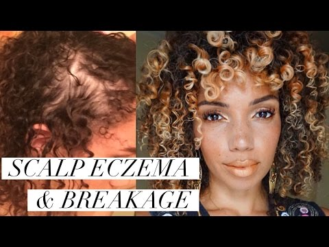 SCALP ECZEMA & NAPE BREAKAGE | Remedies/ Natural Products