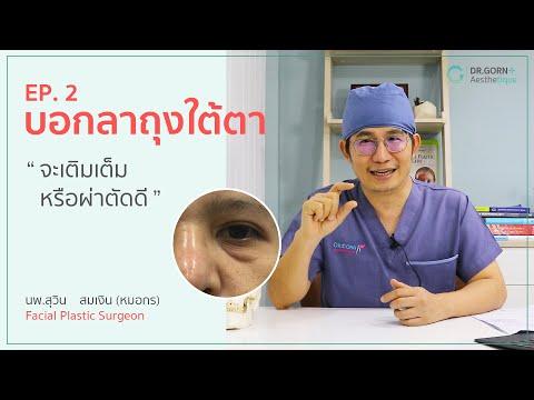 บอกลาถุงใต้ตา EP.2/2 | นพ.สุวิน สมเงิน - หมอกร | Dr.Gorn Aesthetique