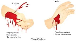 Rompida morte a varizes de uma sangrar cirurgia até pode você a devido