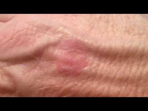 Amazing Healing from Cannabis. skin disease, Eczema, Psoriasis over 10 years discomfort
