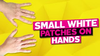 Small White Patches on Hands