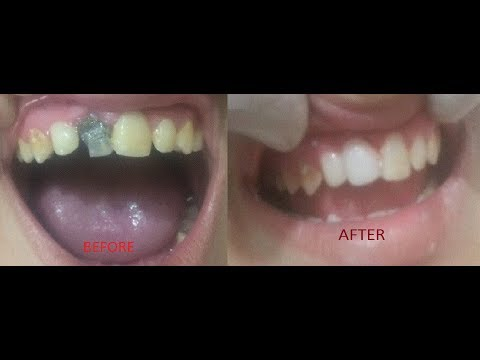 Root Canal Treatment OF Right Central Incisor