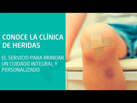 Clínica De Heridas Brinda Atención Integral Y De Calidad